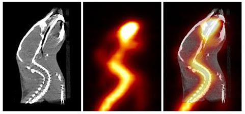 Una serie de imágenes, TC a la izquierda, TEP al centro y una combinación TEP y TC