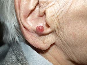 English: Merkel cell carcinoma in 94-year-old ...