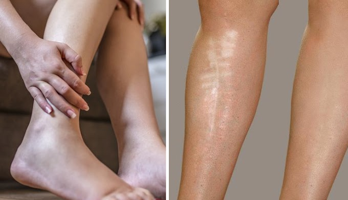 Got Dark Spots And Scars On Your Legs? Here's How You Can Get Rid Of Them