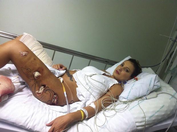 Angencia divulga fotos impressionantes das pernas de Andressa Urach