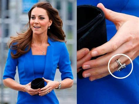 Kate Middleton is just one of several famous faces who has