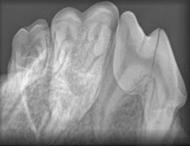 Dental for vets 2