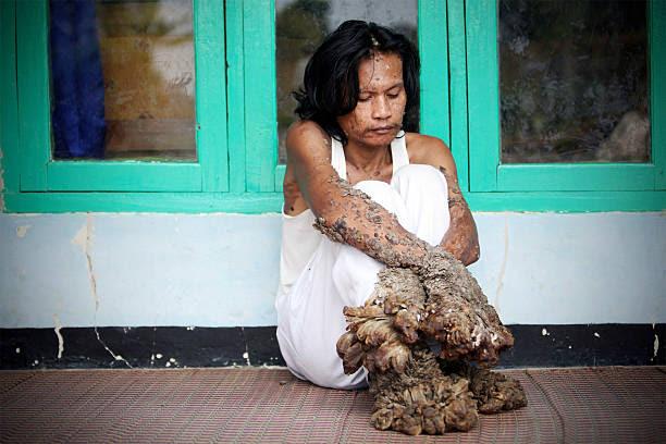 デデ コサワ の写真 画像 Id 94569041 Indonesian Tree Man