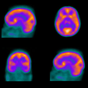 Worth 1,000 Words: What a Brain Scan Reveals About ADHD ...