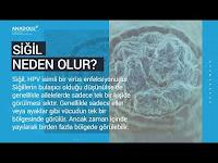 Siğil Nedir? Siğil Nasıl Geçer (Siğil Tedavisi) - Anadolu Sağlık Merkezi