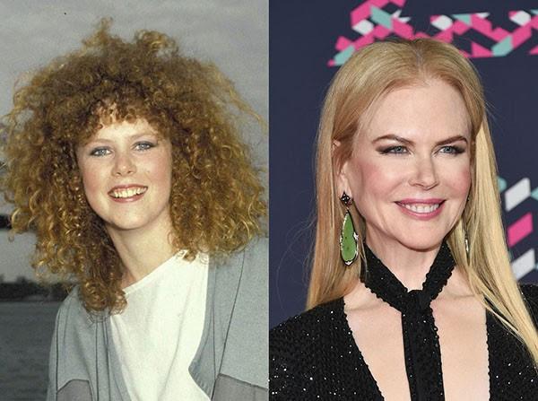 Nicole Kidman (em 1983 e em 2016) (Foto: Getty Images)
