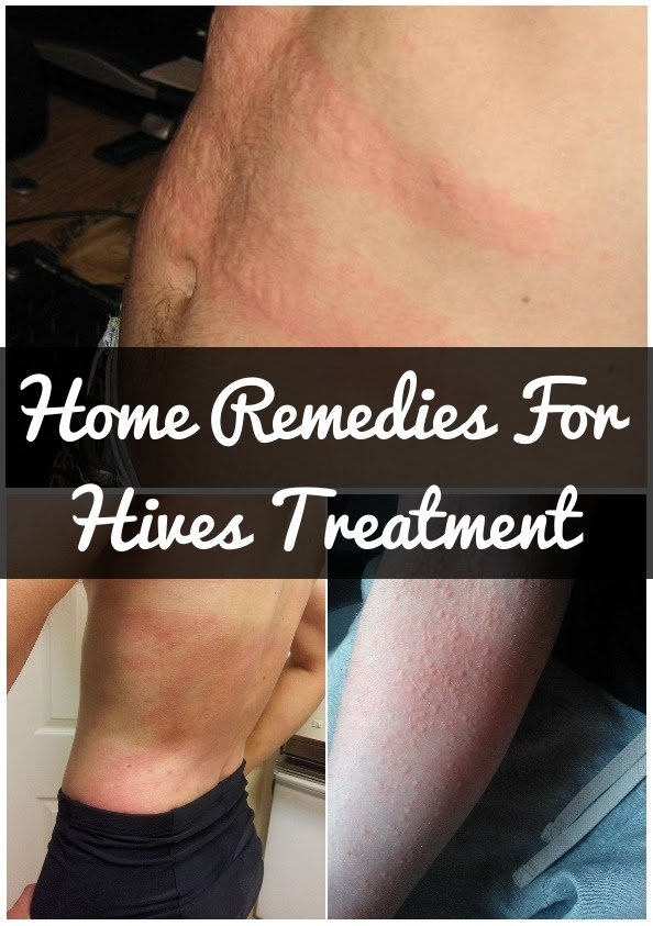 How-To-Get-Rid-Of-Hives-Naturally.jpg 594×843 pixels ...