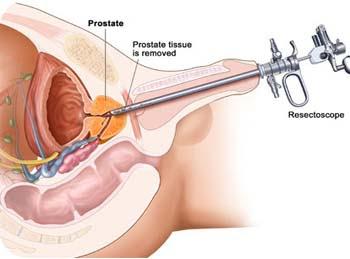 Prosztatitis kezelésére szolgál Prostatitis és feladata