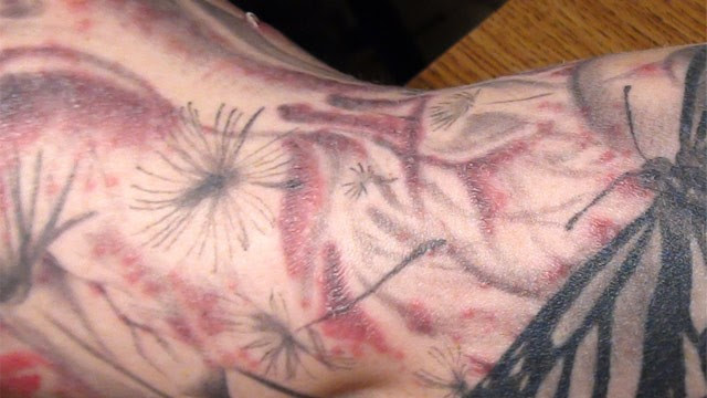 PHOTO: Tattoo ink skin infection