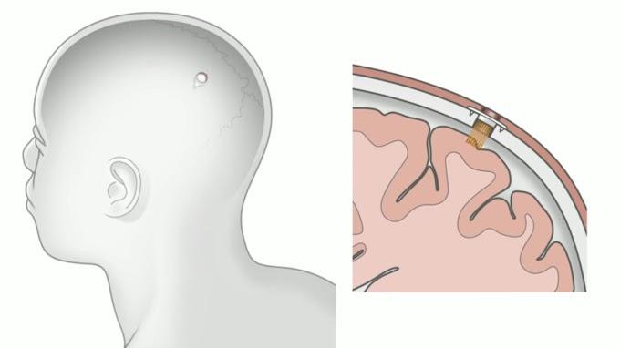 Fitbit в черепе: Илон Маск представил чип Neuralink, который вживляется в голову человека