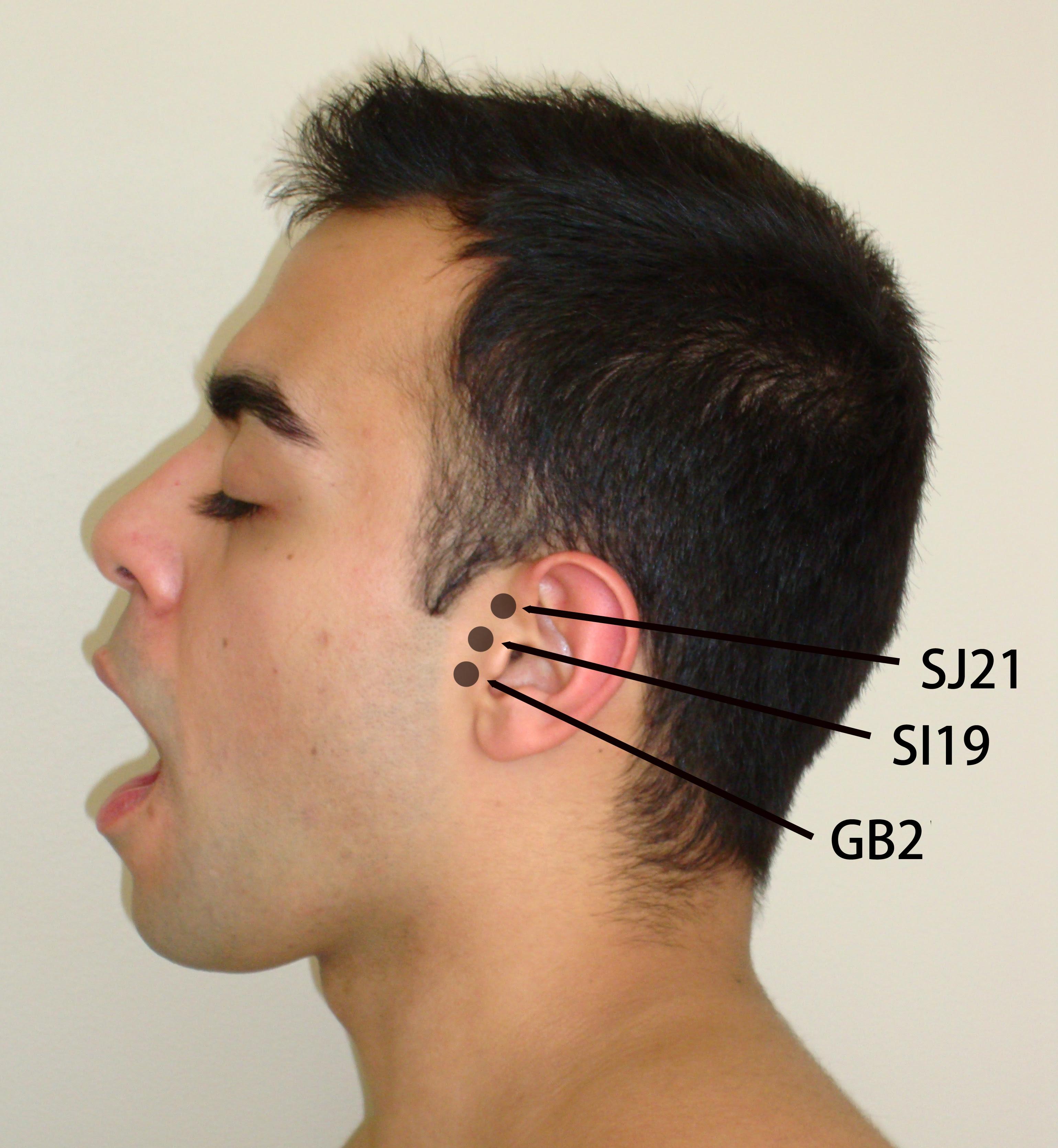 Acupuncture And Tinnitus Treatment - Acupuncture ...