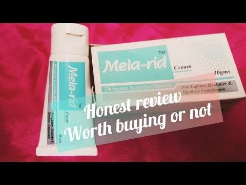 Mela rid cream review /for melasma / skin lighting  Mela Rid Cream Side Effects