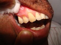 इस घिसे हुये दांत का क्या होगा ?