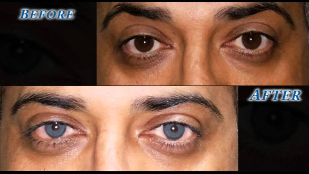Eye Color Change Surgery, Coloring Wallpapers Download Free ...