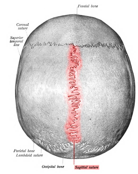The sagittal suture, highlighted in red, separates the two parietal plates