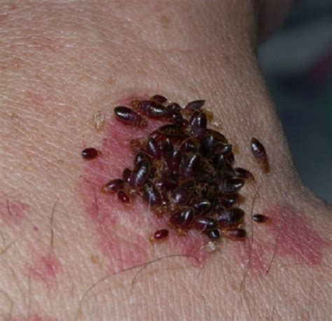 Bed Bugs Pictures bed bug pictures ? BED BUG BITES and BED BUG TREATMENT
