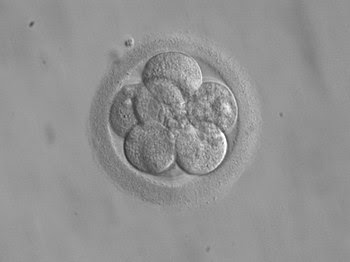 English: 8-cell human embryo, day 3