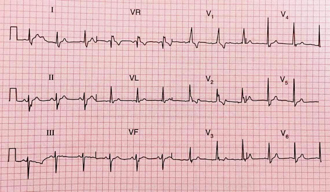 Resultado de imagem para electrocardiografia