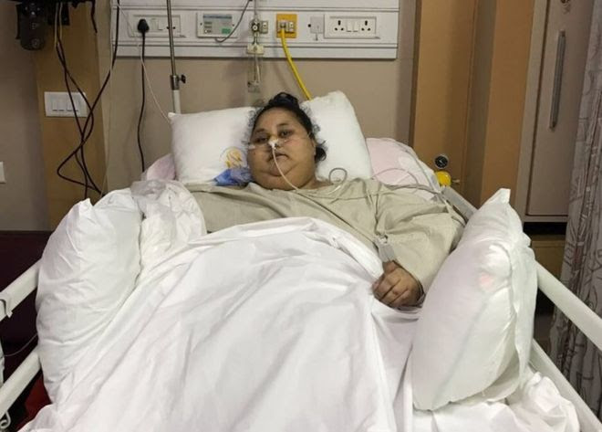 Eman Ahmed Abd El Aty after the surgery