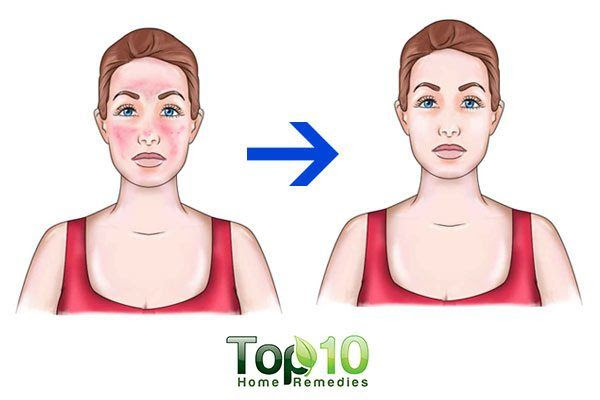 How to Get Rid of Blotchy and Uneven Skin | Top 10 Home ...