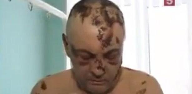 """Foto mostra homem russo sofrendo os efeitos colaterais da droga """"Krokodil"""". Centro de Controle de Intoxicações no Arizona (EUA) registrou dois casos da doença"""