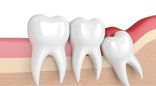 1 Checklist That You Should Keep In Mind Before Visiting Your Dentist For Wisdom Tooth Pain