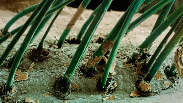 Eyelashes, with D. folliculorum lurking in the follicles (Credit: Steve Gschmeissner/SPL)