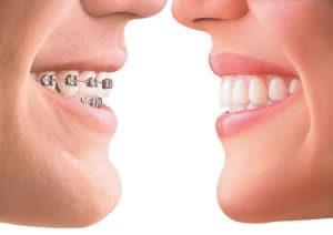antes e depois do aparelho dentario
