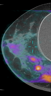 Esta es una foto de una imagen por TC tomada con una TC de seno dedicada, sobrepuesta con una tomografía TEP para revelar áreas de alto metabolismo que señalan varios tumores