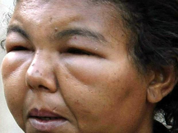 Faxineira teve reação alérgica à escova progressiva  (Foto: Reprodução/TV TEM)