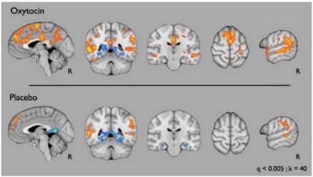Oxytocin_EIM_brain_IMFAR2012