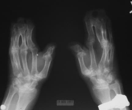 Note osseous syndactyly involving the second, thi...