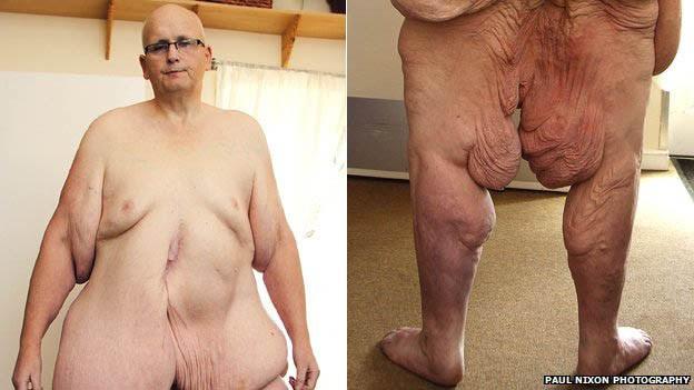 Ex-mais gordo do mundo apela a nudez em luta por cirurgia  (Foto: Paul Nixon Photography)
