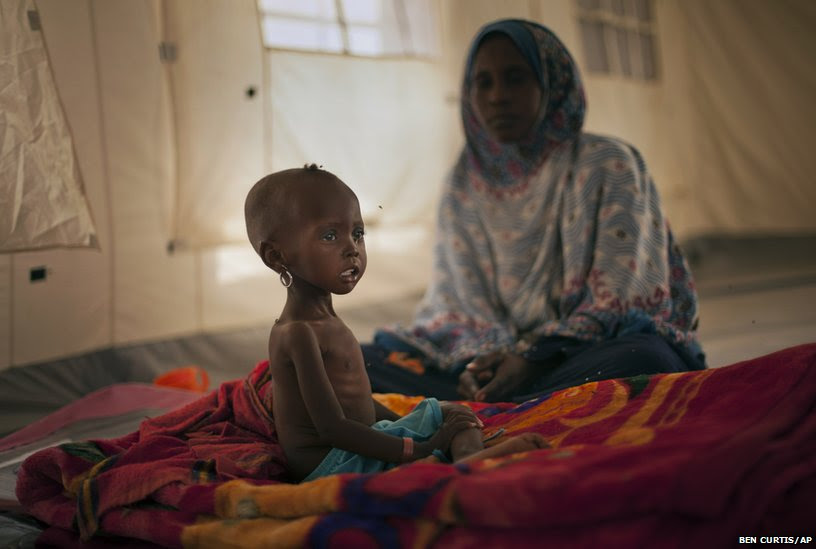 A child recovering from severe malnutrition
