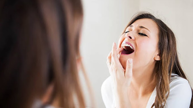 NATURAL WAYS TO RELIEVE TOOTHACHE AT HOME