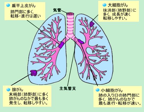 肺がん 末期 症状 肺がんの末期症状と延命治療 肺がん症状・治療ナビ...