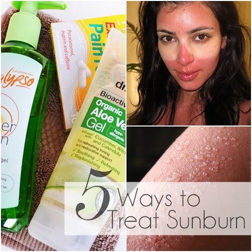 HOW_TO_TREAT_SUNBURN.