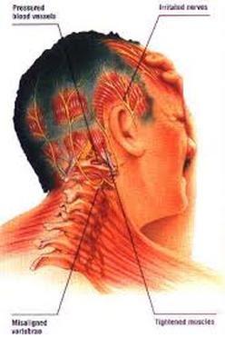 Cervicogenic - CERVICAL SPINE PAIN