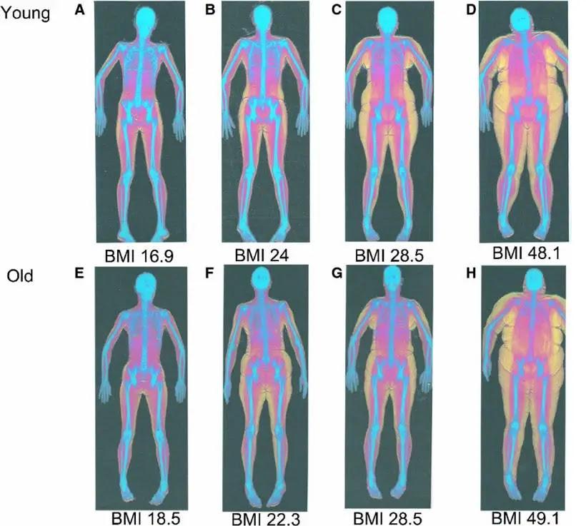 body fat percentage and bmi chart