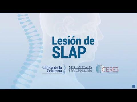 Dolor de Hombro: Lesión de SLAP