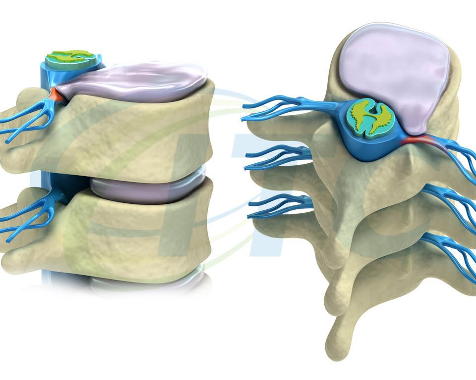 hernia de disco tratamento 02