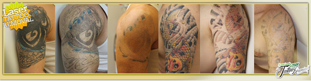 Laser Tattoo Removal Houston - Sugar Land - Clinic