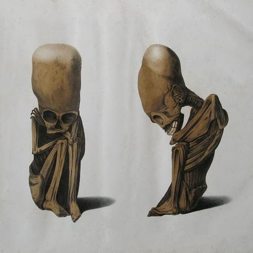 Odd Peruvian skeletons