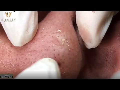 Spa điều trị mụn cám mũi hiệu quả Q. Tân Bình, TPHCM. Tại Hiền Vân Spa - bài 168