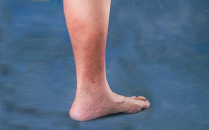 Causes of Skin Discoloration On Ankles | Chicago Vein Care ...