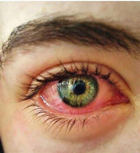 pin  denis galeanu  bho bloodshot eyes red eyes