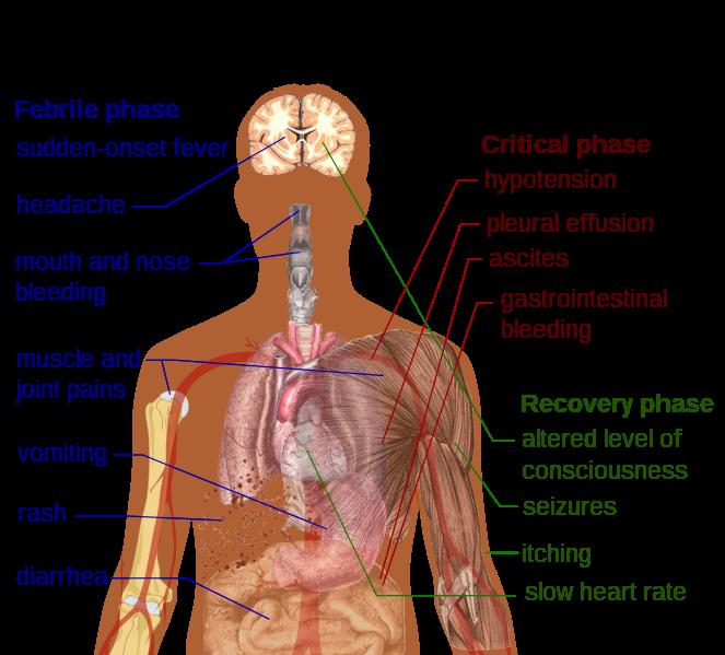 File:Dengue fever symptoms.svg