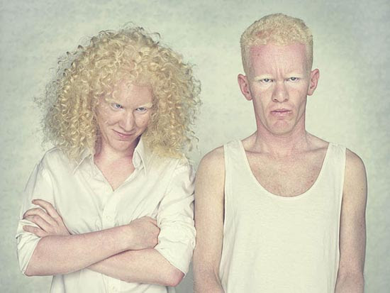 Albino (11)