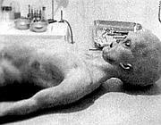 Una delle immagini dell'autopsia di un alieno nella base supersegreta «Area 51» (archivio Corriere)