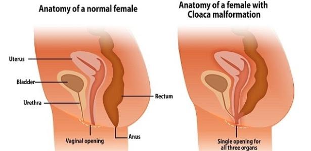 Ilustração mostra diferença entre anatomia de uma mulher normal (com três canais) e a malformação em que há apenas um, a cloaca